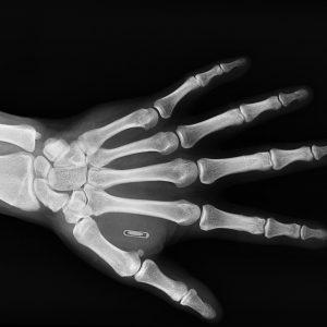 RFID-implantat